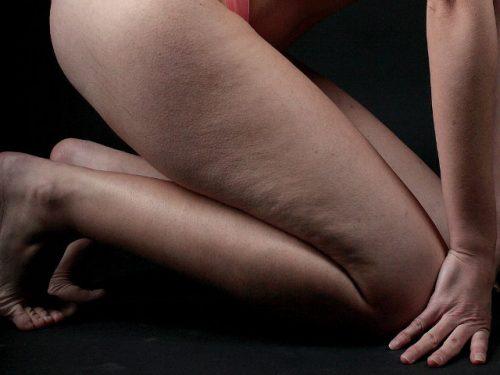 Проблема целлюлита у худых