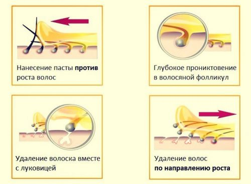 Процесс проведения шугаринга
