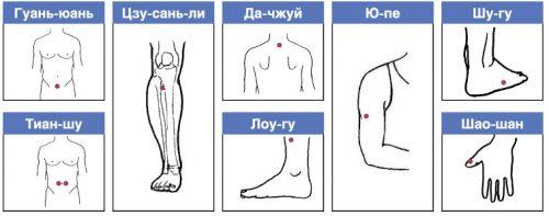Точки для иглоукалывания для похудения