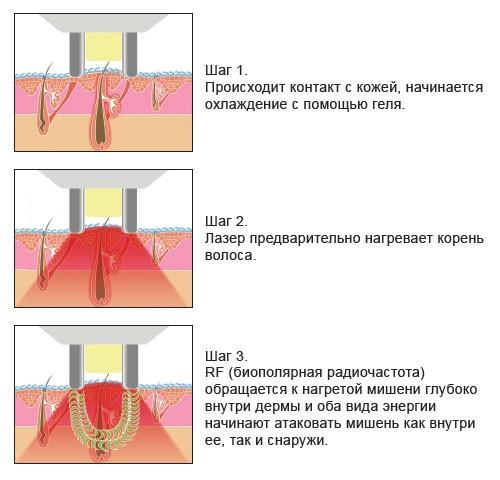 Схема элос-эпиляции