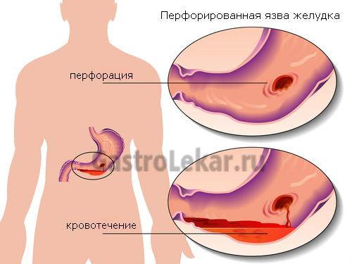 Схема перфорации желудка
