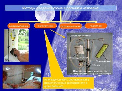 Методы введения озона