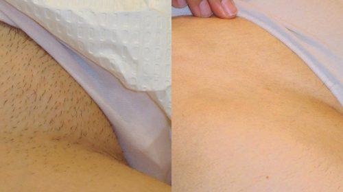 Результат крема