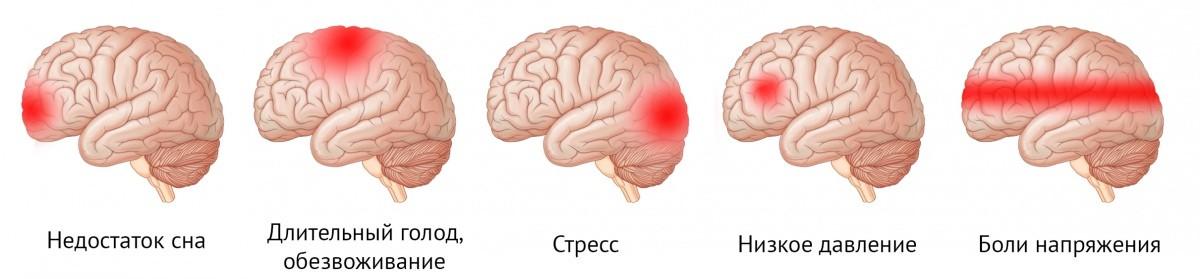 Локализация головной боли