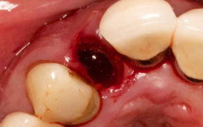 кровяной сгусток после удаления зуба фотографии