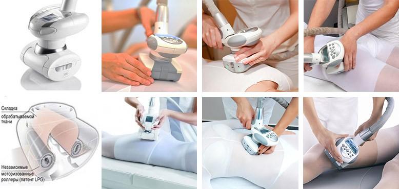 Выполнение LPG-массажа