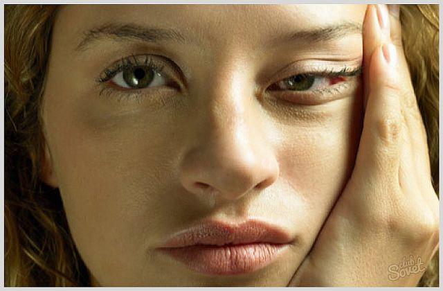 Почему при климаксе у женщин возникают отеки