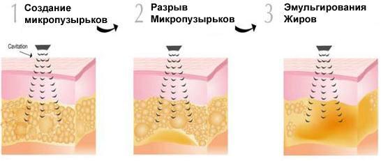 Ультразвуковая терапия против целлюлита