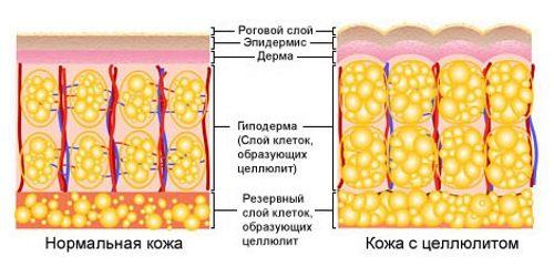 Гиноидная липодистрофия или целлюлит