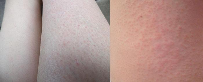Раздражение кожи после применения полосок