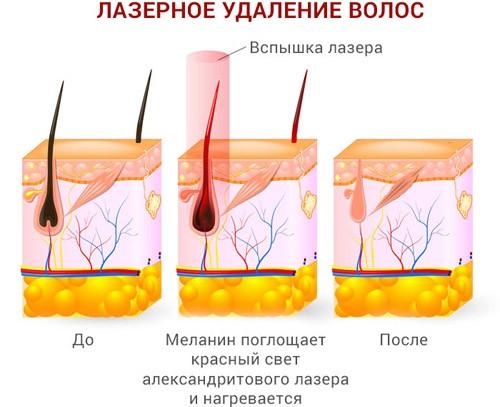 Схема лазерной эпиляции