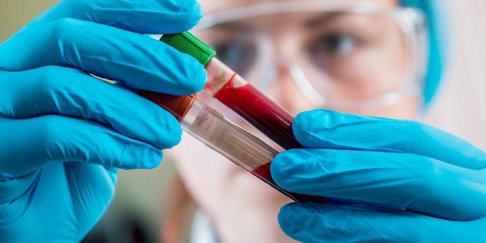 биохимическое тестирование крови