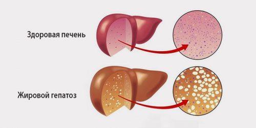Ожирение печени или гепатоз