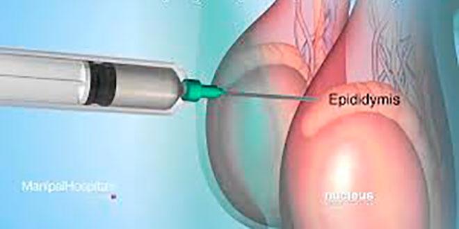 биопсия яичек при тесте на бесплодие у мужчин