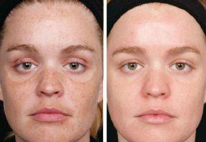 Очищение кожи и выравнивание тона