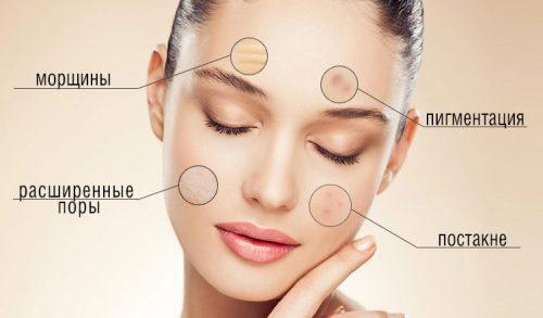 Проблемы кожи лица