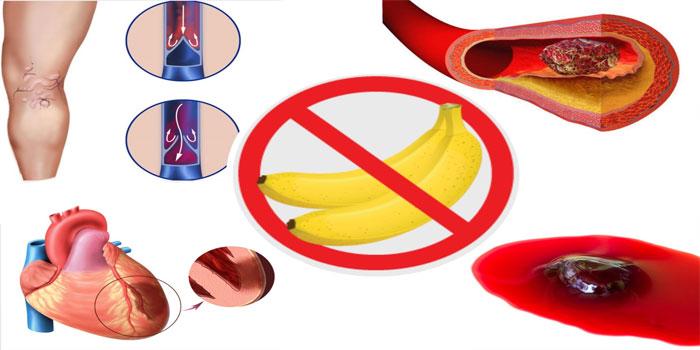 противопоказания банана