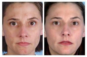 Улучшение структуры кожи