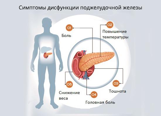 Признаки и лечение нарушения работы (дисфункции) поджелудочной железы
