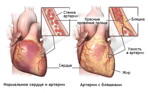 Атеросклероз артерий сердца