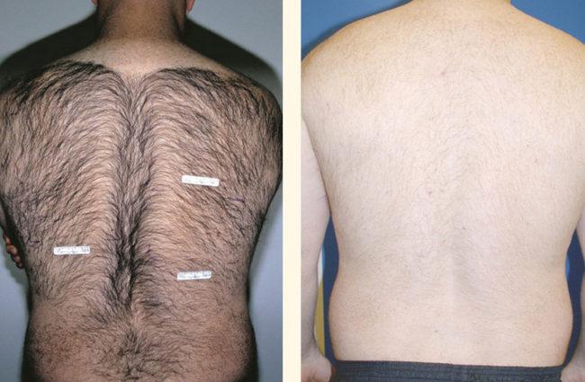 как удалить волосы на спине мужчины в домашних условиях