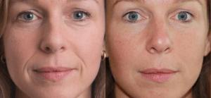 Омоложение кожи до и после