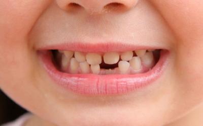 молочный зуб выпал фото